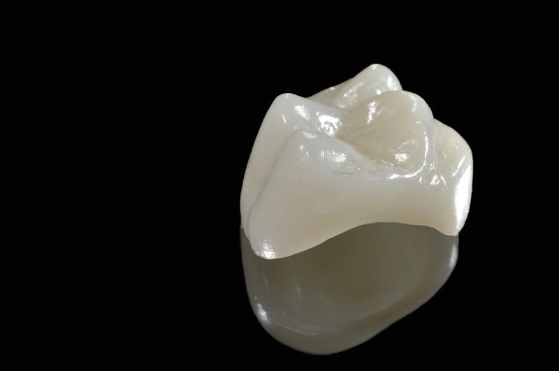 Porcelain Crowns  New Ulm, MN